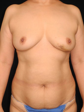 52 y/o - Immediate Bilateral DIEP Breast Flap Reconstruction