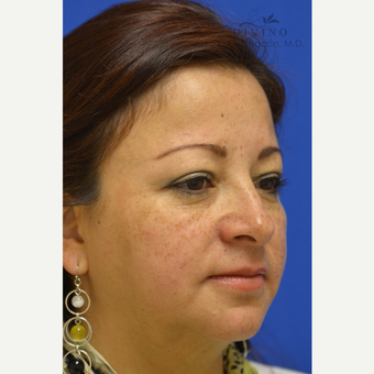 45-54 year old woman treated with Cheek Augmentation after 3421920