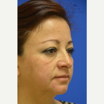 45-54 year old woman treated with Cheek Augmentation before 3421920