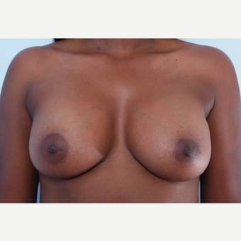 Breast Augmentation after 3340382