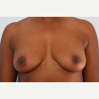 Breast Augmentation before 3340382