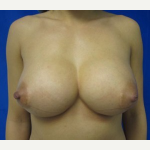 Breast Implant Revision before 3164444