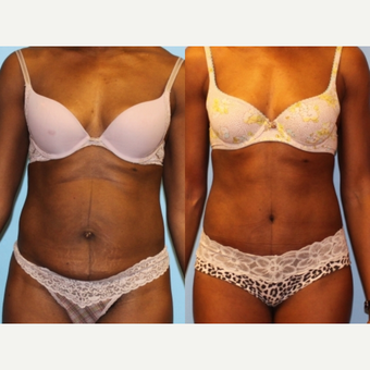 35-44 year old woman treated with Tummy Tuck before 2813319