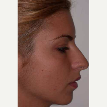 25-34 year old woman treated with Rhinoplasty before 3499773
