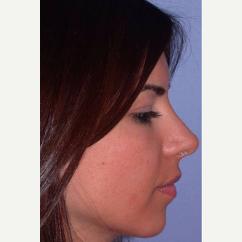 25-34 year old woman treated with Rhinoplasty after 3499773