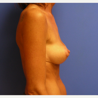 35-44 year old woman treated with Breast Lift after 3482677