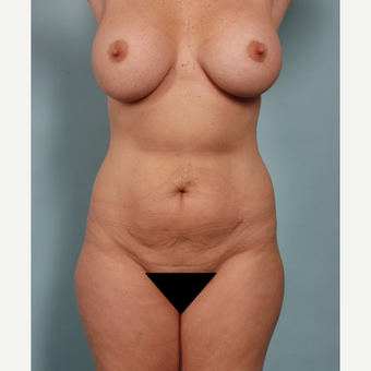 45 year old woman treated with Vaser Liposuction