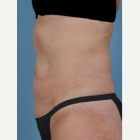 55-64 year old woman treated with CoolSculpting after 2155008