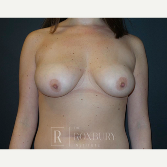 25-34 year old woman treated with Breast Lift before 3844315
