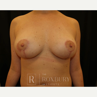 25-34 year old woman treated with Breast Lift after 3844315