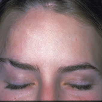 This woman had significant forehead scaring. She underwent scar revision and laser skin resurfacing after 3841019