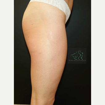 35-44 year old woman treated with Butt Lift before 3076028