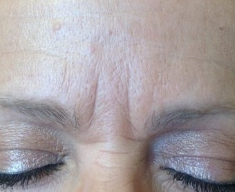 52 year old female treated with Belotero and Botox for lines between her eyes before 1417934