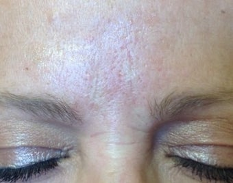 52 year old female treated with Belotero and Botox for lines between her eyes after 1417934