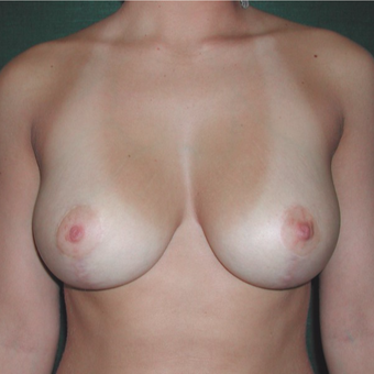 25-34 year old woman treated with Breast Reduction after 3059525