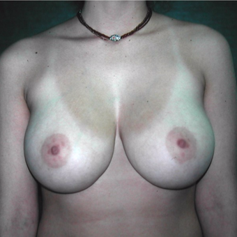 25-34 year old woman treated with Breast Reduction before 3059525