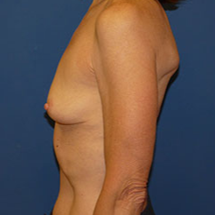 Breast Implant Removal after 2267586