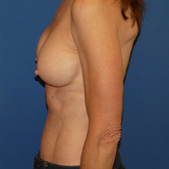 Breast Implant Removal before 2267586