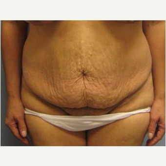 45-54 year old woman treated with Lower Body Lift before 3737285