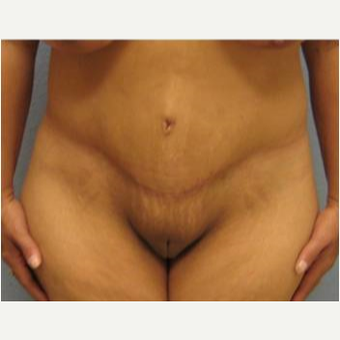 45-54 year old woman treated with Lower Body Lift after 3737285
