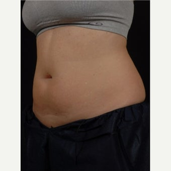 35-44 year old woman treated with CoolSculpting before 2476890