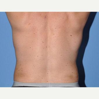 45-54 year old man treated with Liposuction after 3258645