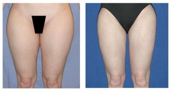 Laser Liposuction before 1496803