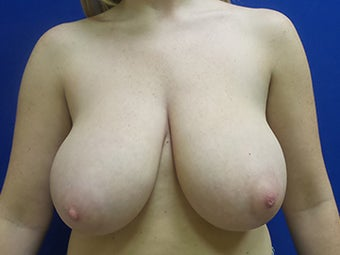 Breast Reduction and Lift before 3258594