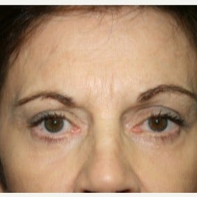 65-74 year old woman treated with Eyelid Surgery after 1709759