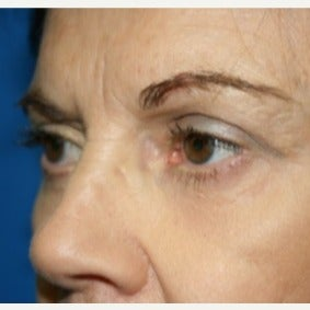 65-74 year old woman treated with Eyelid Surgery 1709759
