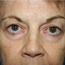 65-74 year old woman treated with Eyelid Surgery before 1709759