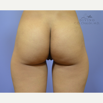 25-34 year old woman treated with Labiaplasty after 3329682