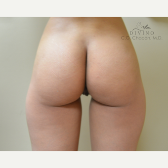 25-34 year old woman treated with Labiaplasty before 3329682