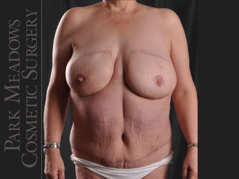 removal of failed, painful implant, bilateral DIEP Flap, fat grafting, nipple reconstruction, areola pigmentation after 1083667