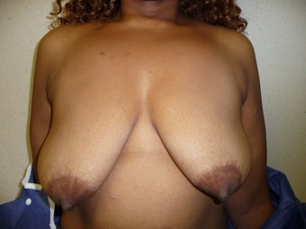 'Ultimate Breast Lift' with no implants before 374317