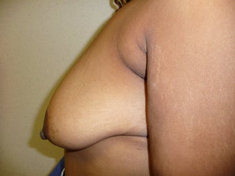 'Ultimate Breast Lift' with no implants 374317