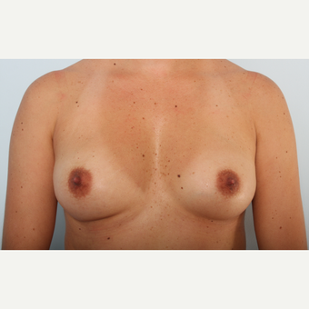 Breast Augmentation before 3425436
