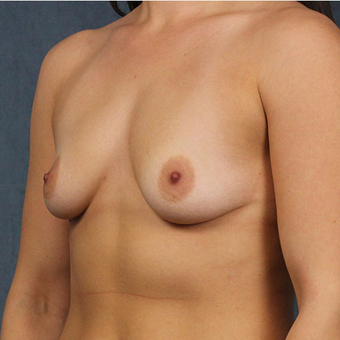 Breast Implants before 3033611