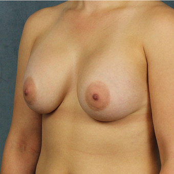 Breast Implants after 3033611