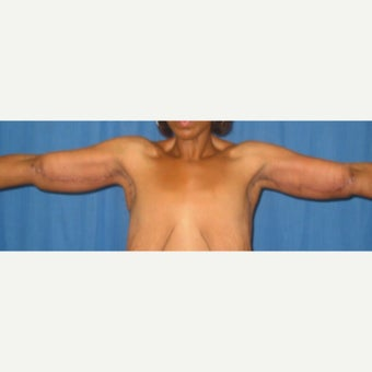 41 year old gastric bypass patient treated with Arm Lift 1830175