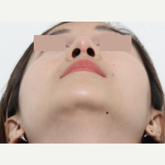 25-34 year old woman treated with Rhinoplasty after 3366536