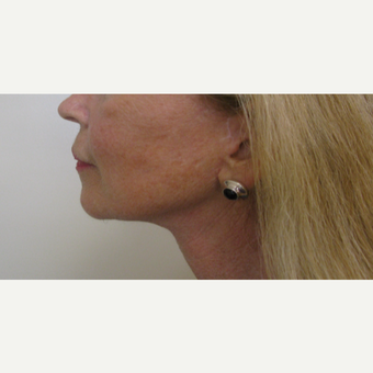 55-64 year old woman treated with Neck Lift after 3383893