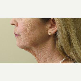 55-64 year old woman treated with Neck Lift before 3383893