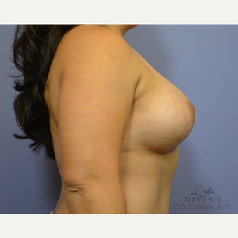 35-44 year old woman treated with Breast Augmentation after 3419058