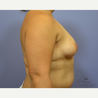 35-44 year old woman treated with Breast Augmentation before 3419058
