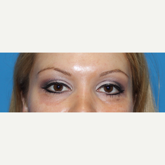 25-34 year old woman treated with Juvederm before 3332823