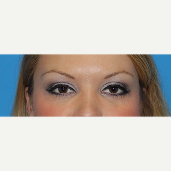 25-34 year old woman treated with Juvederm after 3332823