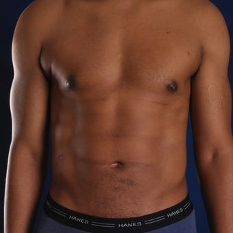 45 year old man treated with Liposculpture