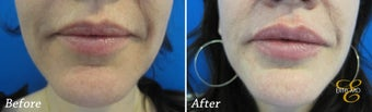 Juvederm before 346500