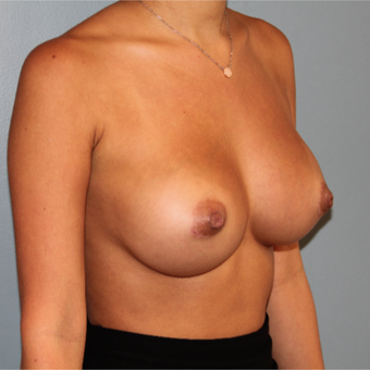 28 year old has breast augmentation with 295cc  Natrelle Breast Implants after 3467468